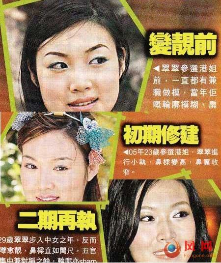 """叶翠翠整容失败 """"变脸王""""港姐冠军整容史"""